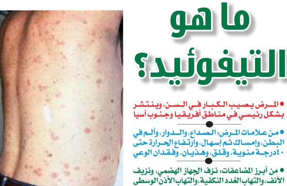 بالصور مرض التيفوئيد , اعراض مرض التيفوئيد 552 1