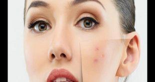 التخلص من بقع الوجه , علاج بقع البشرة