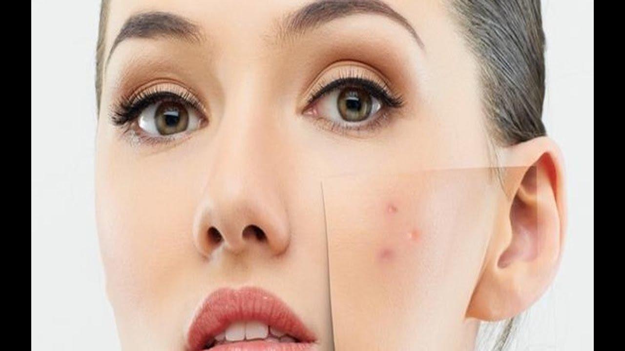 صور التخلص من بقع الوجه , علاج بقع البشرة