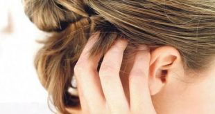 بالصور علاج حكة الراس , ماهو مرض حكة الراس 11898 2 310x165