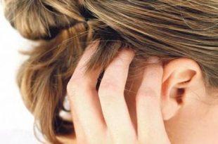 صورة علاج حكة الراس , ماهو مرض حكة الراس