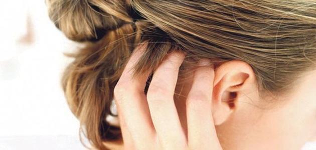 صور علاج حكة الراس , ماهو مرض حكة الراس