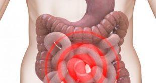 صور اعراض القولون العصبي المزمن , التعامل مع مرض القولون العصبي