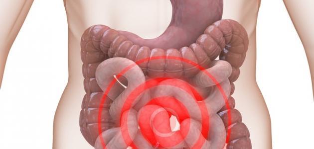 بالصور اعراض القولون العصبي المزمن , التعامل مع مرض القولون العصبي 11901