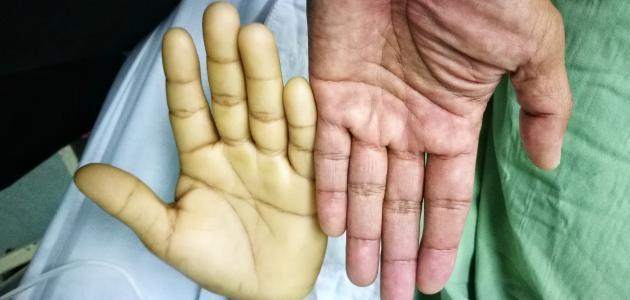صور ما اعراض فقر الدم , تعرف علي اعراض الانيميا