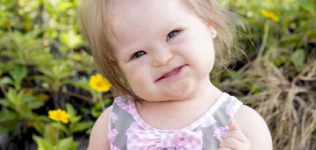 صور سبب متلازمة داون , مرض متلازمة داون للاطفال