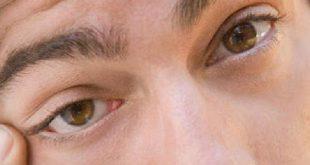 صورة اسباب نبض العين , ماهو مرض نبض العين