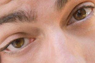 صور اسباب نبض العين , ماهو مرض نبض العين