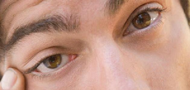 اسباب نبض العين ماهو مرض نبض العين اقتباسات