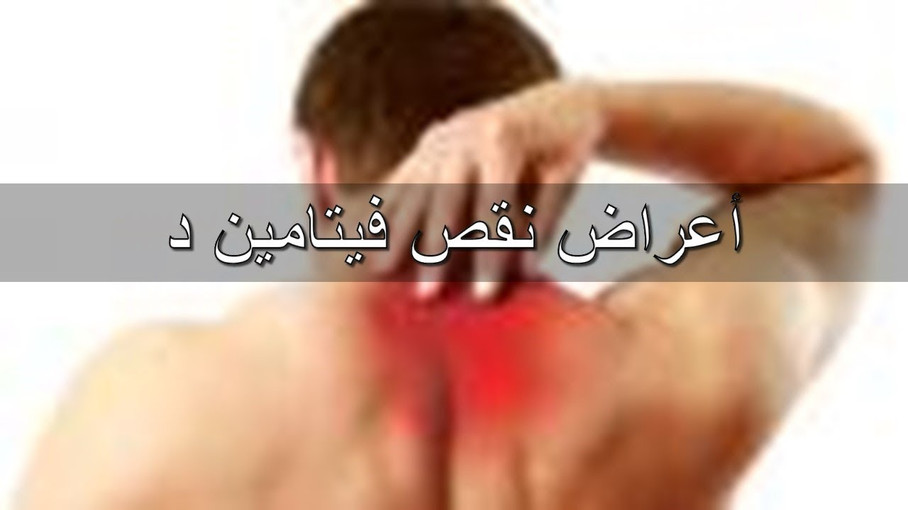 صور علامات نقص فيتامين د , اعراض عدم وجود فيتامين د في الجسم