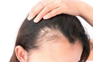 صورة حل تساقط الشعر , كيفية تقوية الشعر