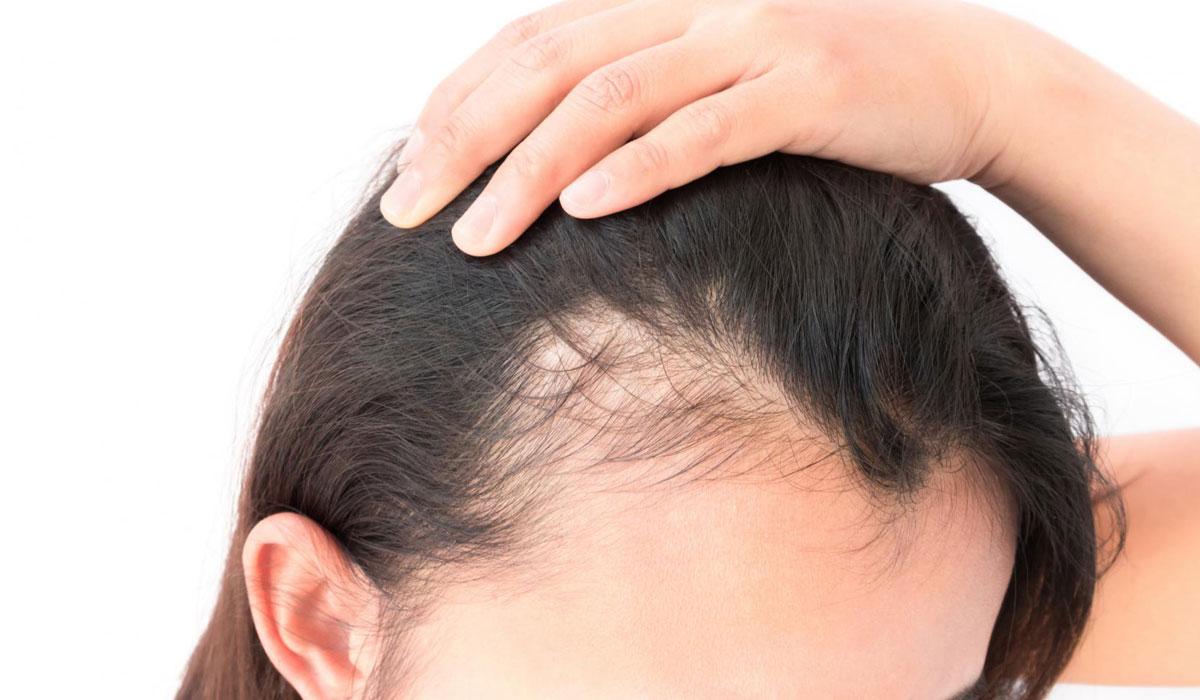 صور حل تساقط الشعر , كيفية تقوية الشعر