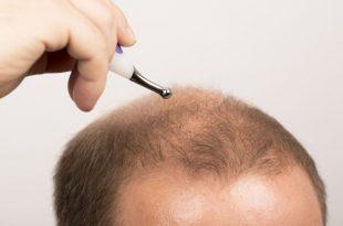 صورة زراعة الشعر في الدمام , تفاصيل عن زراعة الشعر