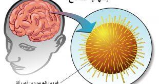 صور اعراض التهاب المخ , ماهي امراض المخ