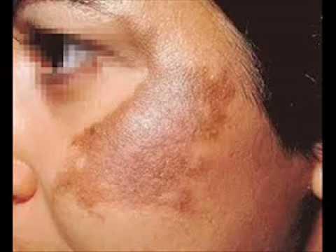 صور الكلف في الوجه , طريقة التخلص من الكلف