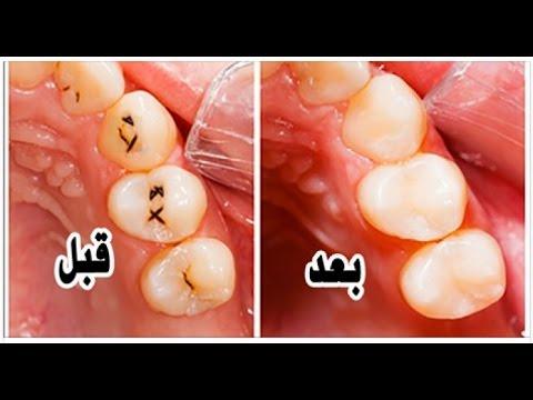 صور علاج تسوس الاسنان , الاهتمام بالنفس