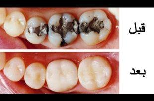 صورة علاج تسوس الاسنان , الاهتمام بالنفس