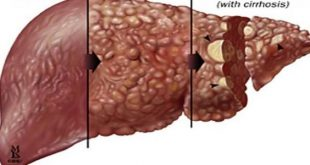 صورة مرض الكبد الوبائي , الم موجع صعب تحمله