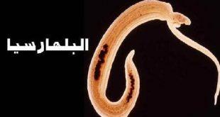 صورة مرض البلهارسيا , اعراض الاصابة بالبلهارسيا