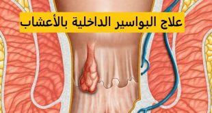 صورة مرض البواسير , ما هو مرض البواسير