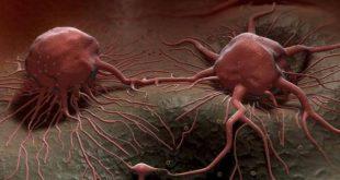 صورة علاج مرض السرطان , الطرق المستخدمة في علاج السرطان