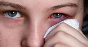نصائح لحماية العين ,  علاج حكة العين