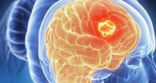اعراض مرض سرطان المخ