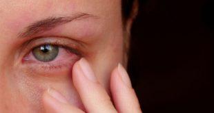 علاج العين